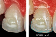 High saturation and contrast photograph: chromatic mapping of the equivalent tooth