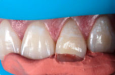 Fitting the silicone impression with resin to the tooth to be restored