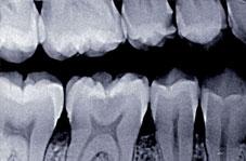Radiographie rétro-coronaire centrée sur 46