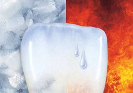 VivaSens… pour dents sensibles